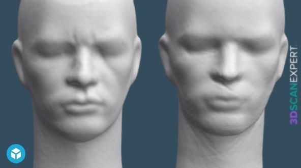 اسکن سه بعدی صورت